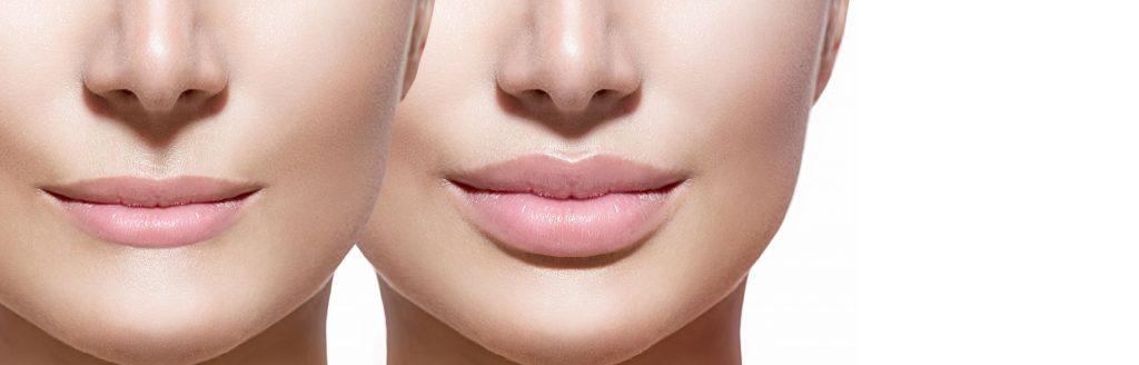 Cosmetic Beauty treatments Harrogate